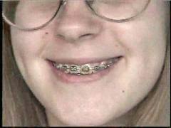 Teen, Teen braces, Braces, Cute teen, Amber, Brace
